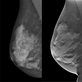 siemens tomosynthesis Siemens healthcare receives fda approval for stand-alone 3d mammography screening with tomosynthesis.